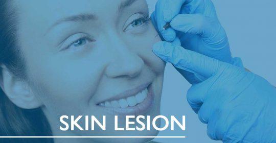Skin Lesion Removal